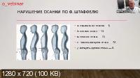 Визуальная диагностика нарушений статики и динамики (2021/PCRec/Rus)